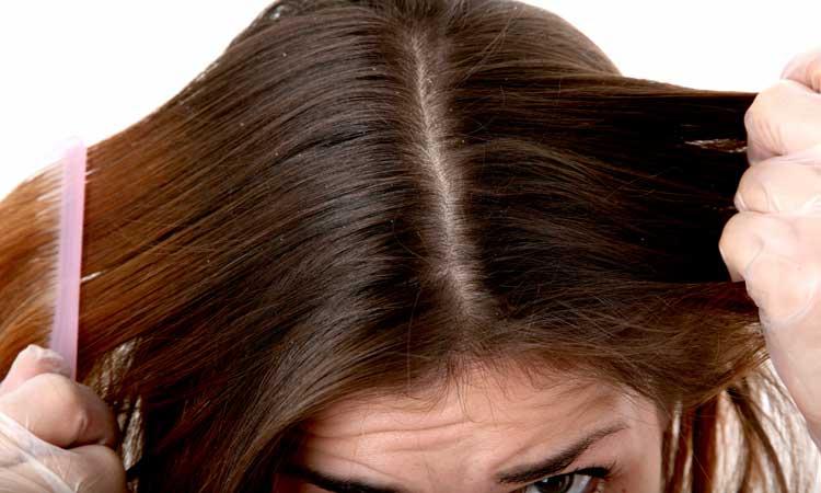 29 Remedios caseros para el cuero cabelludo seco