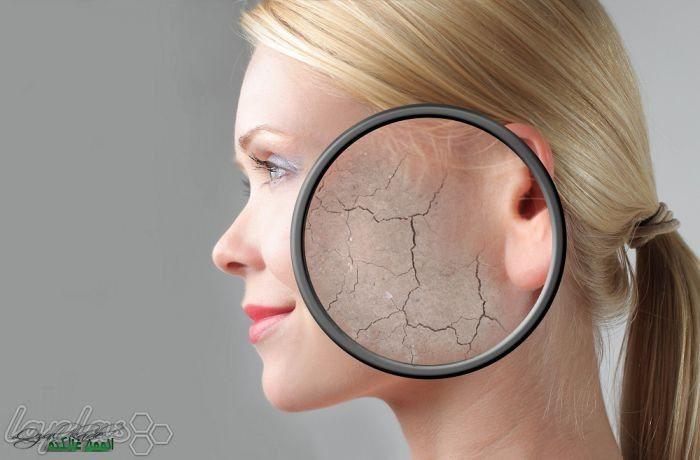 32 Remedios caseros para la piel seca