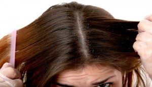 Cómo deshacerse de el cuero cabelludo seco con remedios caseros