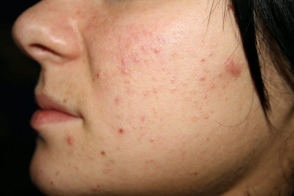 Mis pequeños puntos negros la manera de deshacerse de acné sin problemas y preocuparse