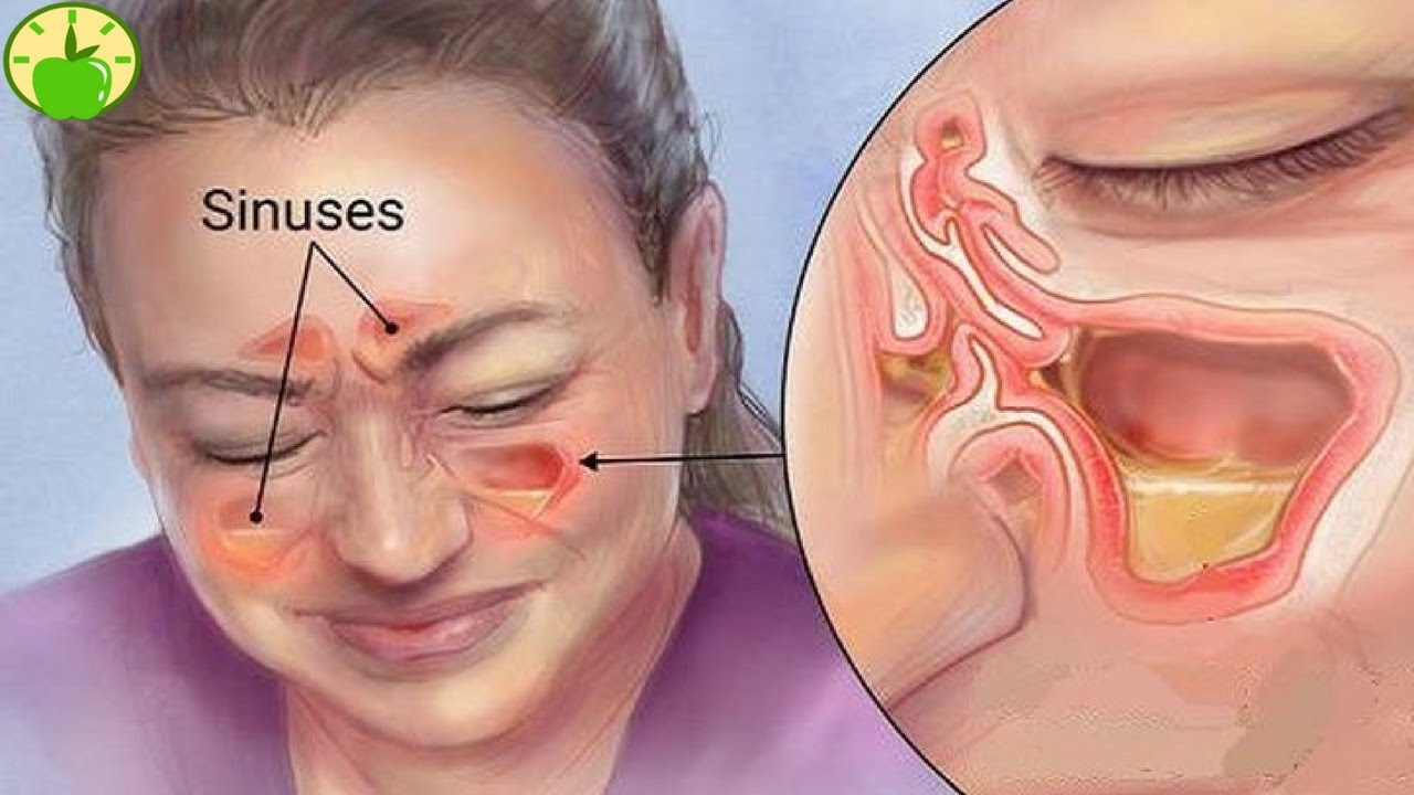 What is a sinus infection?
