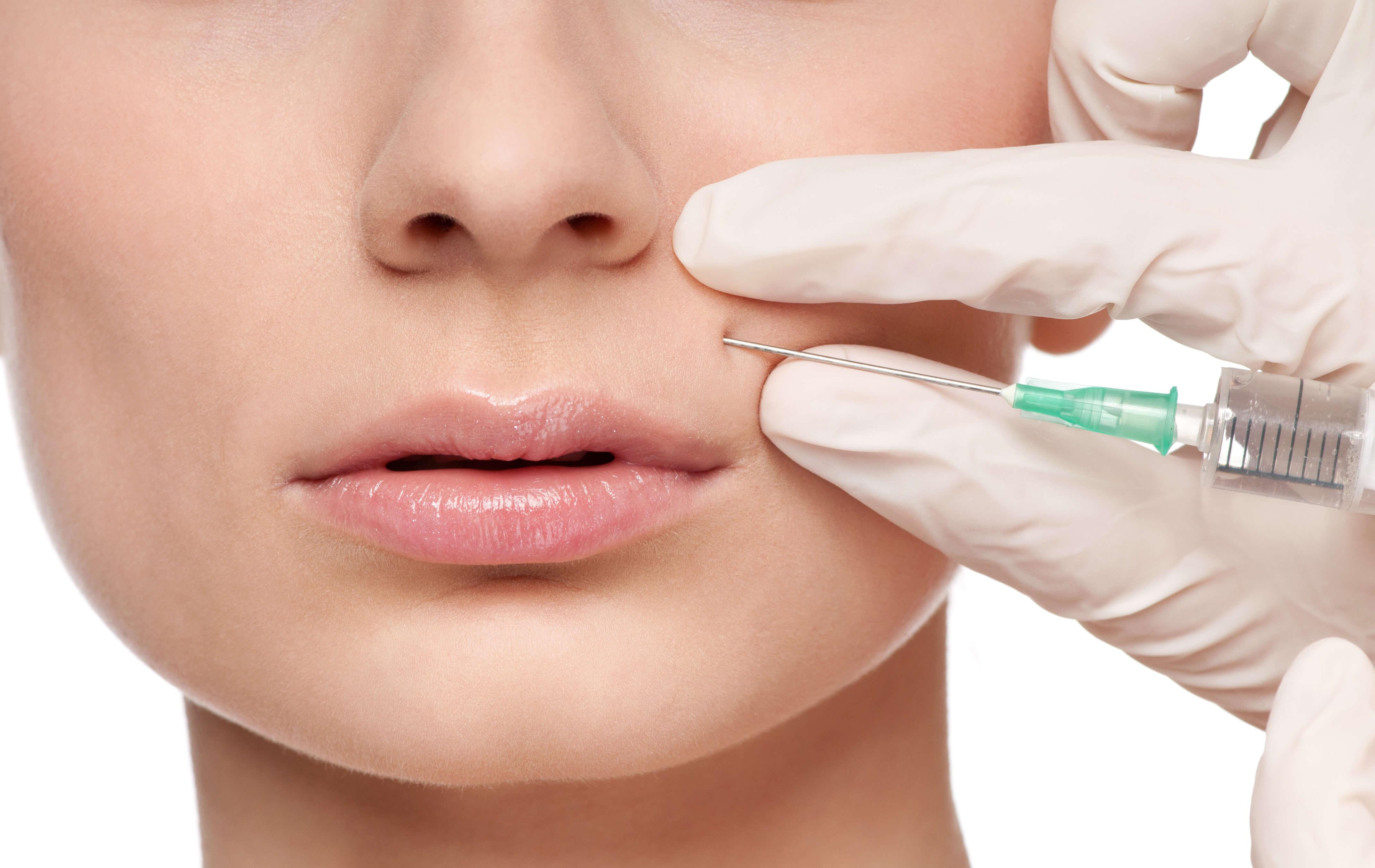 inyecciones para el acné