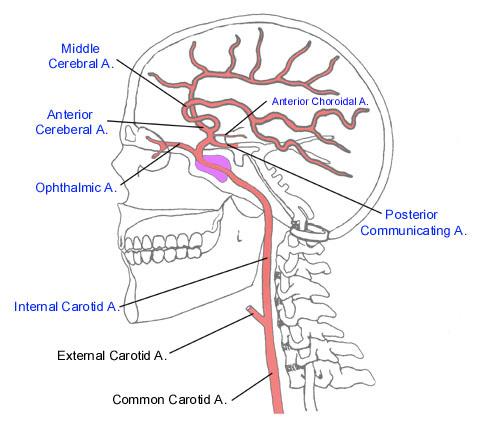 Arteria coroidal anterior