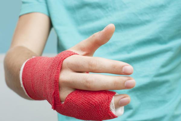 Cómo saber si tu dedo está roto