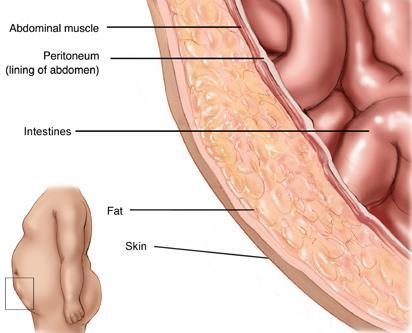 Capas de pared abdominal