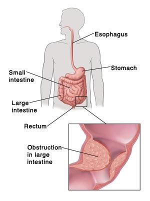 Obstrucción intestinal grande