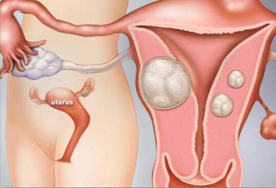 abultado útero con fibroma