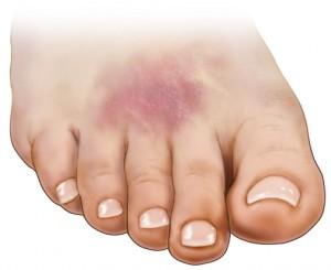 estalló el vaso sanguíneo en el pie