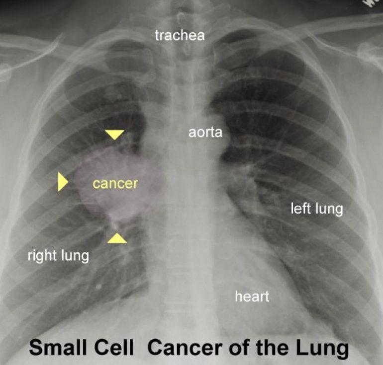 fumadores-livianos-imagenes