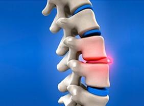 La cirugía de hernia de disco