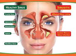 Alergias o infección sinusal