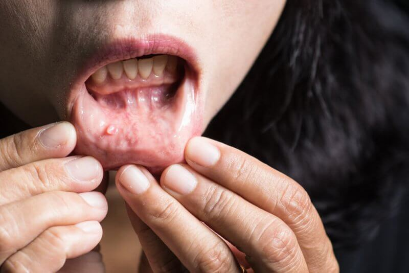 Mucocele oral