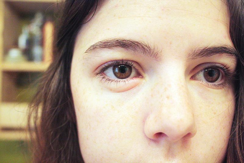Qué causa bolsas debajo de los ojos