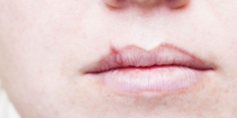 Qué tan comunes son los herpes labiales