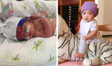 Bebé nacido a las 36 semanas