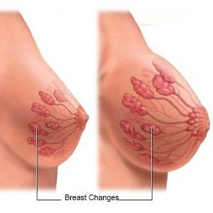 Cambios en los senos en el embarazo temprano