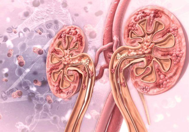 Síndrome Urémico Hemolítico